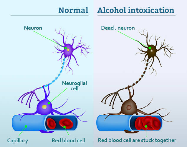 Nerve Damage Caused by Alcohol