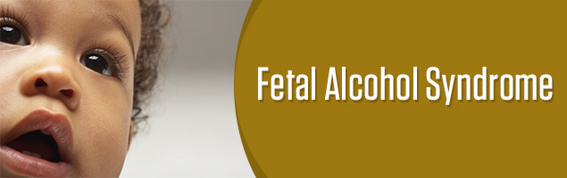 Fetal Alcohol Disorders Are Equally >> Fetal Alcohol Spectrum Disorder Fasd Signs Treatment Prevention