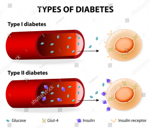 Insulin-Dependent Diabetes Mellitus and Non Insulin-Dependent Diabetes Mellitus