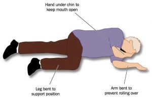 man lying on the side in recovery position