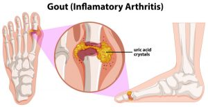 gout infographics