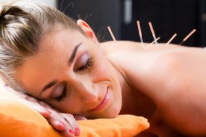 woman at acupuncture therapy session